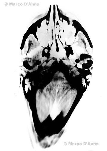 Cat scan elaboration, 2007